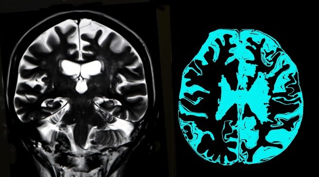 Cortical atrophy more likely in those with motor onset in Huntington's disease