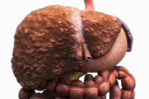 Sleep-wake disorders are common among populations with liver disease