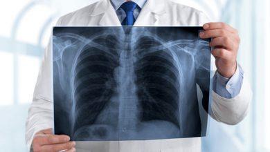 Pneumonia X-Ray
