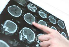 Topological Efficiency Decreases in Parkinson's Disease